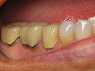 Before Porcelain Crowns