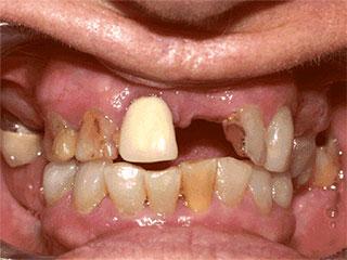 Before Dentures