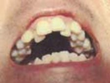 TMJ Before Orthodontics